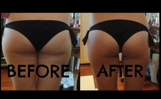 squat avant après