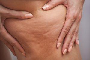 définition de la cellulite