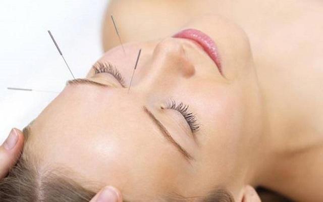 efficacité de l'acupuncture
