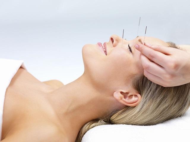 acupuncture pour maigrir