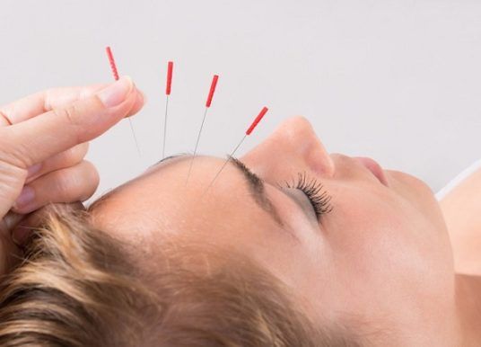 L'Acupuncture pour maigrir : est-ce que ça marche vraiment ?